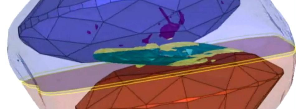 El Galaxy 1000 realiza un mapa tridimensional de las inclusiones.