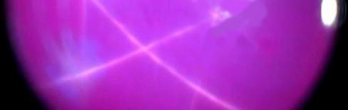 Rubí estrella sintético